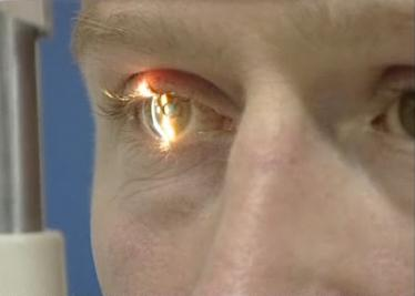 Stem Cell Therapy Cures Man's Blindness